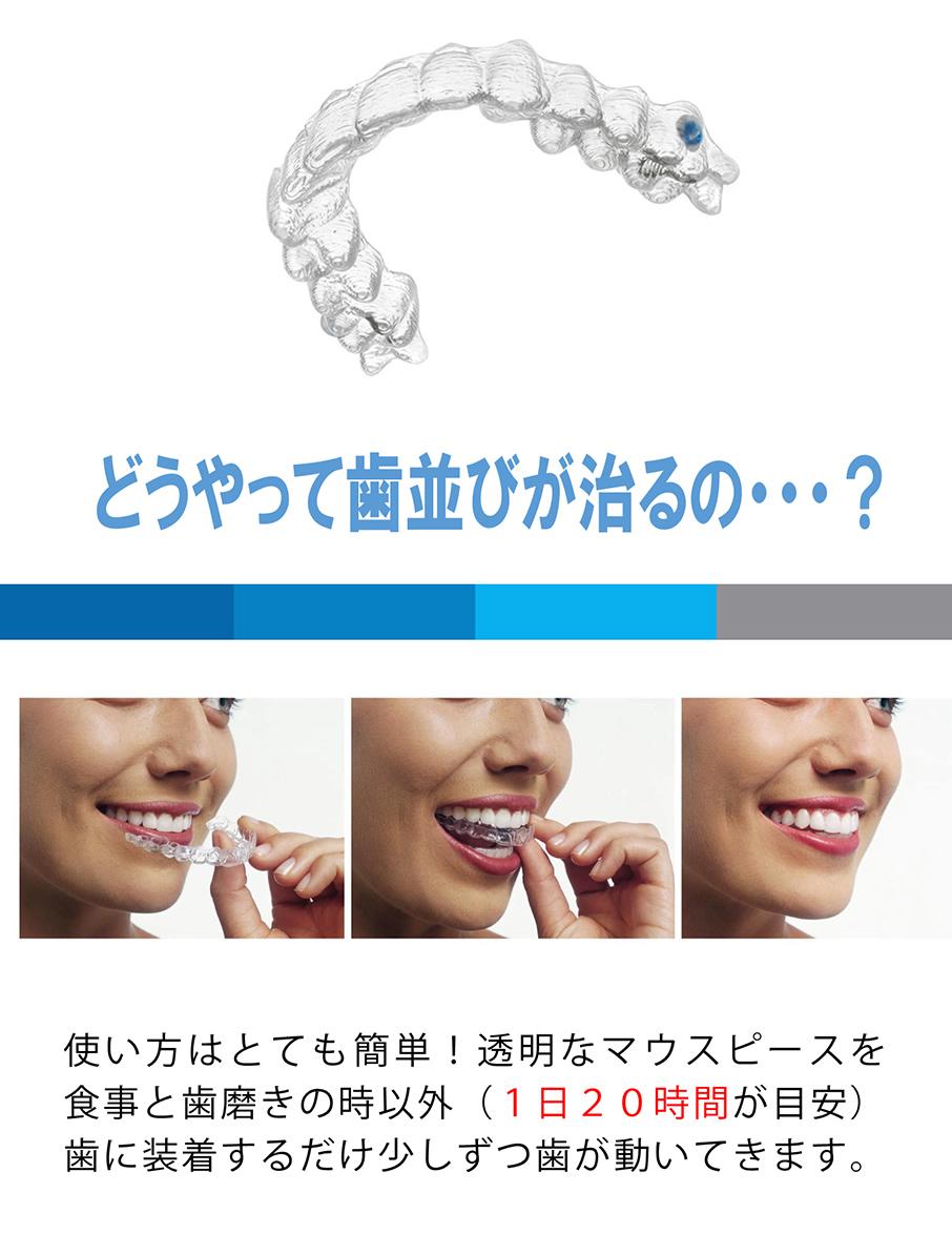 どうやって歯並びが治るの・・・?使い方はとても簡単!透明なマウスピースを食事と歯磨きの時以外(1日20時間が目安)歯に装着するだけ少しずつ歯が動いてきます。