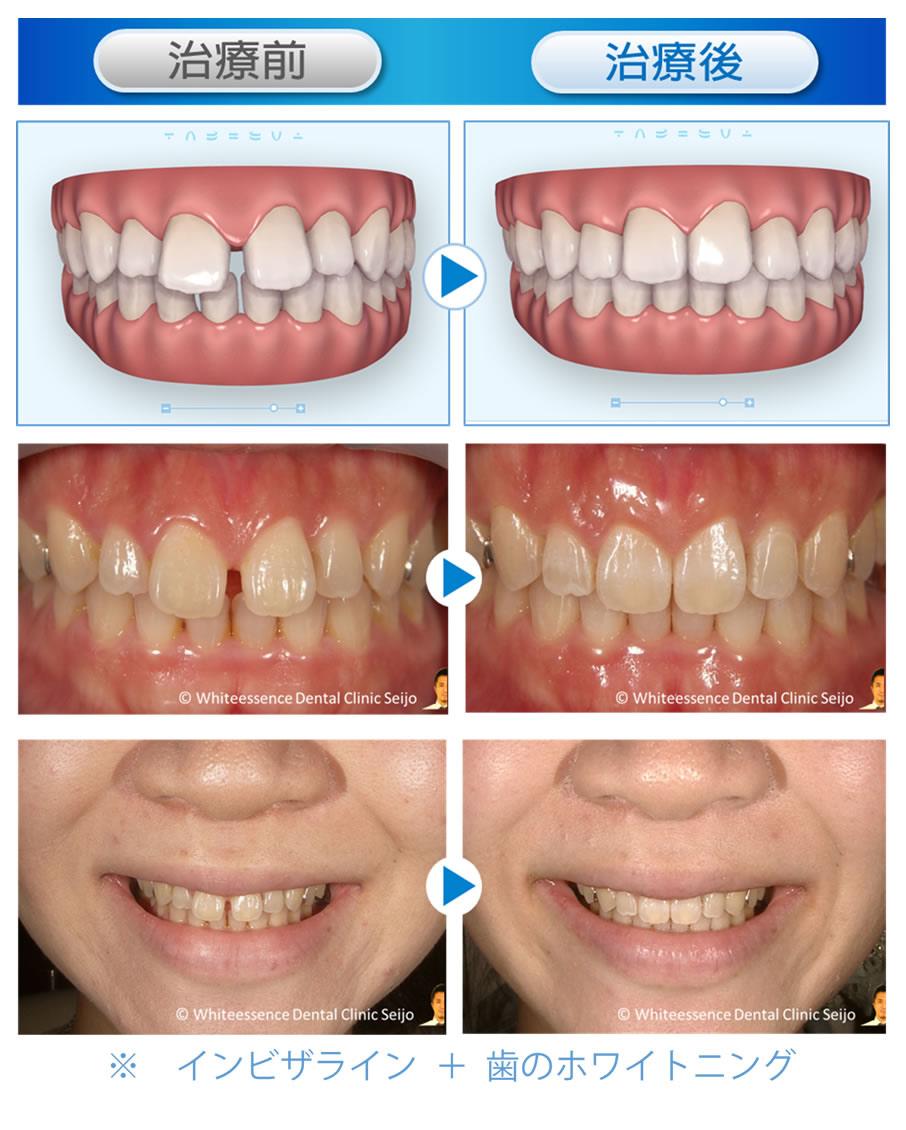 インビザライン+歯のホワイトニング